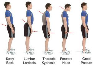 Why Do We Need The Best Posture Brace?